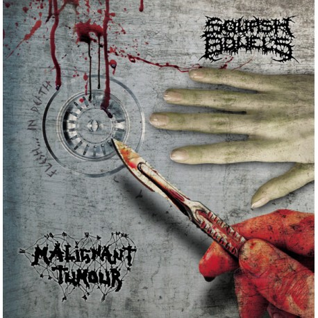 Squash Bowels / Malignant Tumour - Split LP White