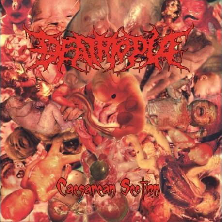 Deathopia - Caesarean Section